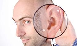 perda auditiva induzida pelo ruído destaque